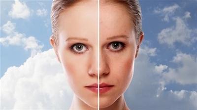 Yüzümüz neden kizarir